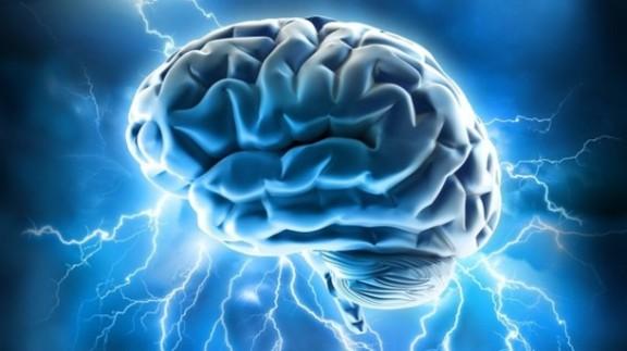 cervello27-2